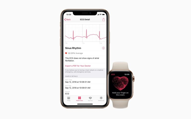 Apple Watch ECG feature coming to Australia and Vietnam next week. When is Malaysia's turn?